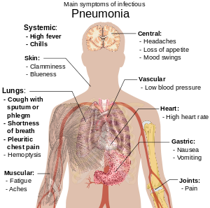 Nursing 704C - Pathophysiology of Altered Health States II